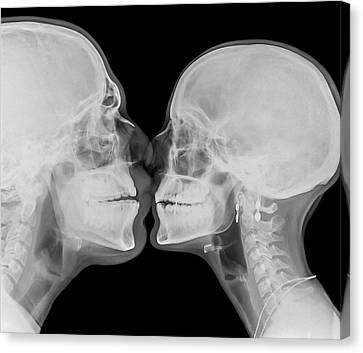 Bonding Canvas Print - X-ray Kissing by Photostock-israel