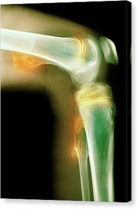 Radiograph Canvas Print - Bone Tumour by Mike Devlin