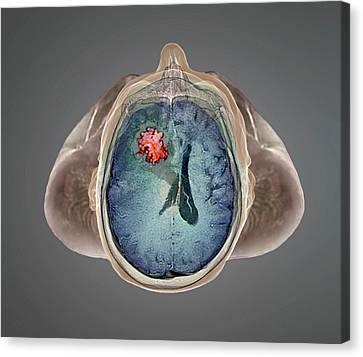 Left Hemisphere Canvas Print - Brain Tumour by Zephyr