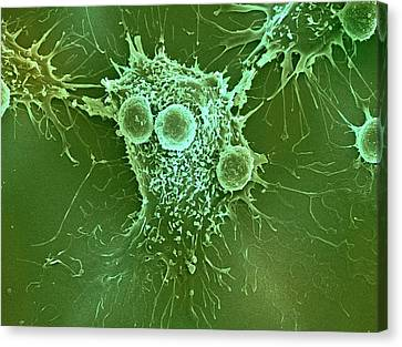 Cancer Cell And T Lymphocytes Canvas Print