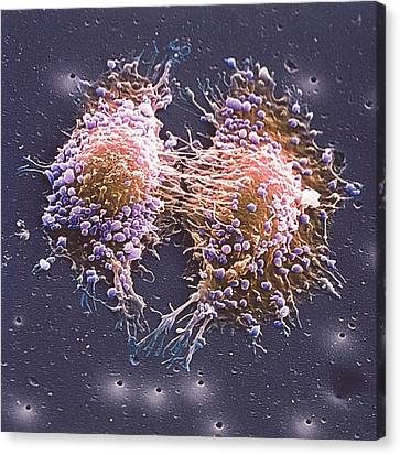 Cancer Cell Division Canvas Print by Steve Gschmeissner