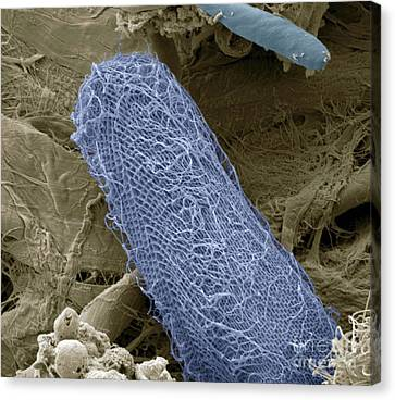 Zoolog Canvas Print - Ciliate Protozoan, Sem by Steve Gschmeissner