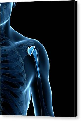 Human Shoulder Replacement Canvas Print by Sebastian Kaulitzki