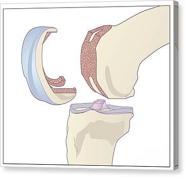 Knee Replacement, Artwork Canvas Print by Peter Gardiner