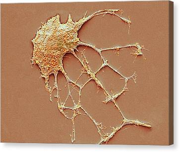 Neurone Canvas Print by Steve Gschmeissner