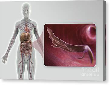 Schistosoma Parasite Worm Canvas Print by Science Picture Co