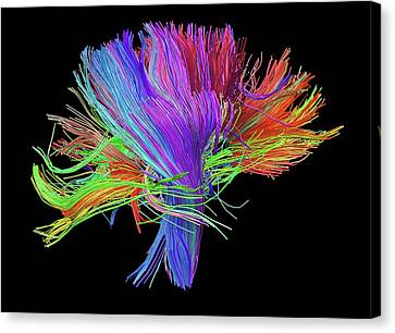 Fiber Canvas Print - White Matter Fibres Of The Human Brain by Alfred Pasieka