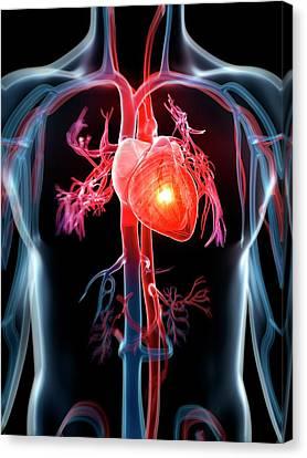 Arrest Canvas Print - Human Heart Attack by Sebastian Kaulitzki