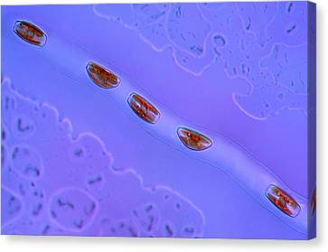 Phytoplankton Canvas Print - Diatoms by Marek Mis