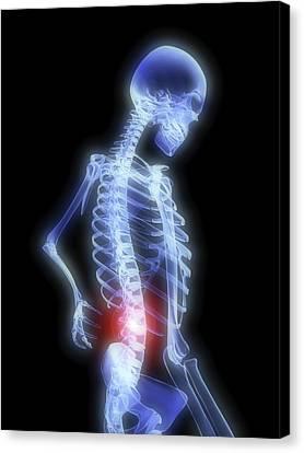 Radiograph Canvas Print - Back Pain by Alfred Pasieka