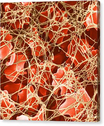 Blood Clot Sem, 2 Of 3 Canvas Print by David M. Phillips