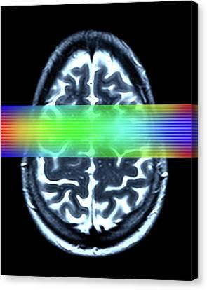 Brain Mri Scan Canvas Print by Alfred Pasieka