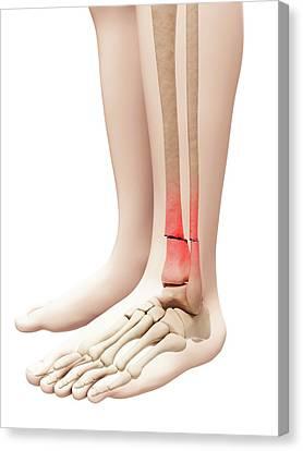 Broken Lower Leg Bones Photograph By Sebastian Kaulitzki
