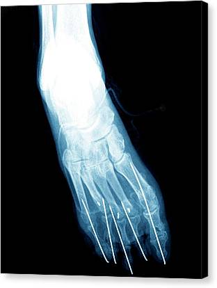 Bunion After Surgery Canvas Print by Zephyr