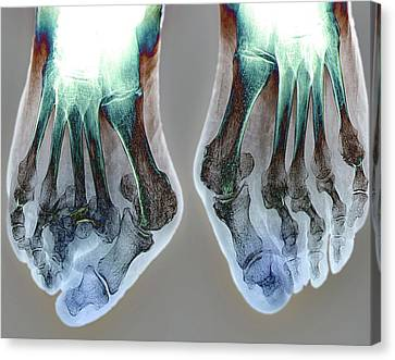 Bunions Canvas Print by Zephyr