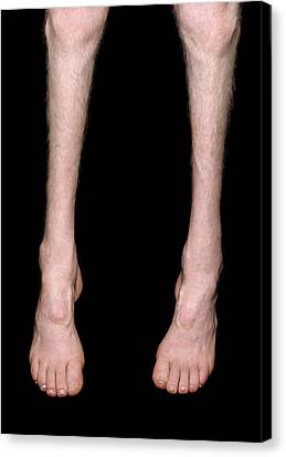 Charcot-marie-tooth Disease Canvas Print by Science Photo Library