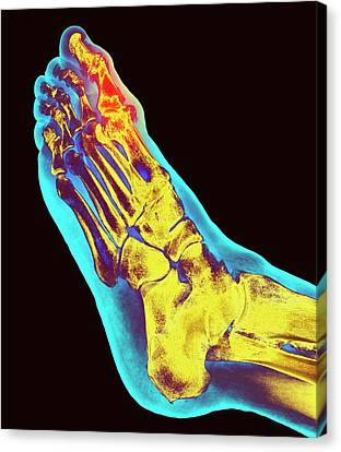 Degenerative Foot Deformation Canvas Print by Dr P. Marazzi