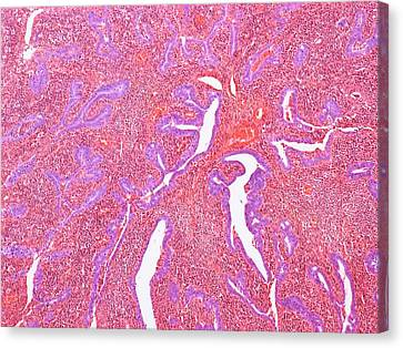Inflamed Fallopian Tube Canvas Print by Steve Gschmeissner