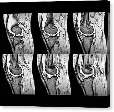 Knee Sprain Canvas Print