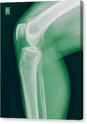 Radiograph Canvas Print - Knee X-ray by Photostock-israel