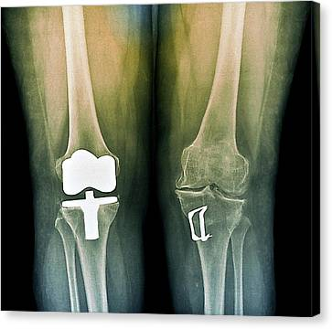 Knees After Corrective Surgery Canvas Print by Zephyr
