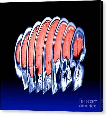 Magnetic Resonance Imaging Mri Canvas Print