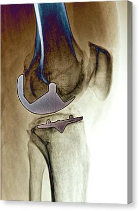 Replacing Canvas Print - Partial Knee Replacement by Zephyr