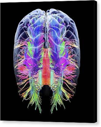 Fiber Canvas Print - White Matter Fibres And Brain, Artwork by Science Photo Library