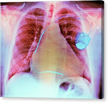Heart Disease Canvas Print - Pacemaker In Heart Disease by Dr P. Marazzi