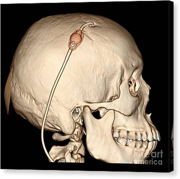 3d Ct Reconstruction Of Intracranial Canvas Print by Living Art Enterprises, LLC