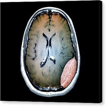 Brain Cancer Canvas Print by Zephyr