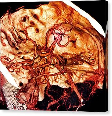 Brain Haemorrhage Canvas Print by Zephyr