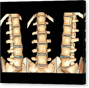 Normal Spine Canvas Print