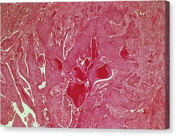 Oesophageal Cancer Canvas Print by Cnri