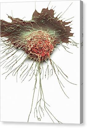 Bronchial Epithelium Canvas Print