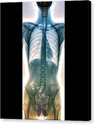 Normal Canvas Print - Normal Spine by Zephyr