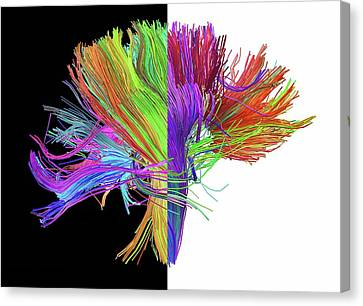 Scan Canvas Print - White Matter Fibres Of The Human Brain by Alfred Pasieka