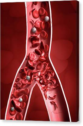 Sickle Cell Anaemia Canvas Print by Tim Vernon