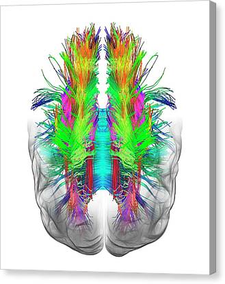 White Matter Fibres And Brain Canvas Print by Alfred Pasieka
