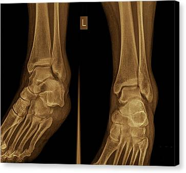 Radiograph Canvas Print - Ankle X-ray by Photostock-israel