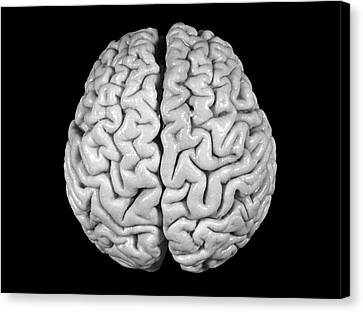 Einstein's Brain Canvas Print by Otis Historical Archives, National Museum Of Health And Medicine