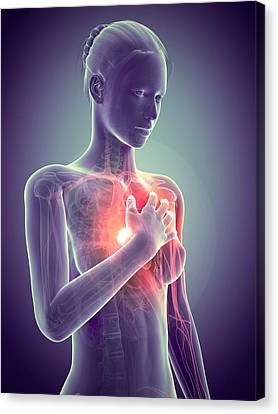 Human Heart Attack Canvas Print