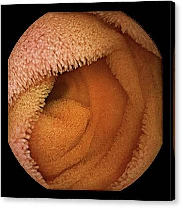 Endoscopy Canvas Print - Small Intestine by Gastrolab