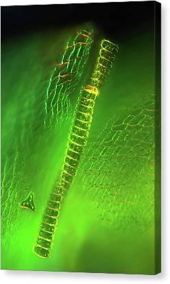 Desmid On Sphagnum Moss Canvas Print by Marek Mis