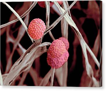 Fungal Cells Canvas Print by Science Photo Library