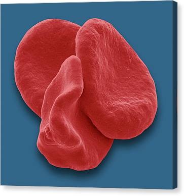 Red Blood Cells Canvas Print by Steve Gschmeissner