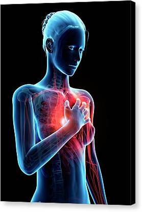 Human Heart Attack Canvas Print by Sebastian Kaulitzki