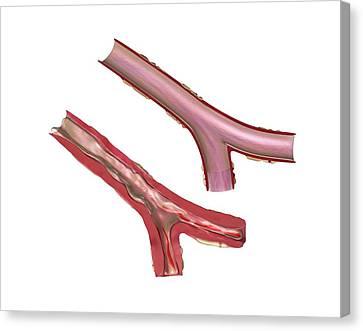 Airways In Cystic Fibrosis Canvas Print by Gunilla Elam