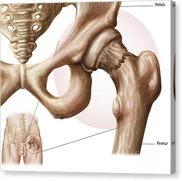 Anatomy Of Hip Fracture Canvas Print by Stocktrek Images