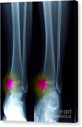 Ankle Fracture Canvas Print by Scott Camazine